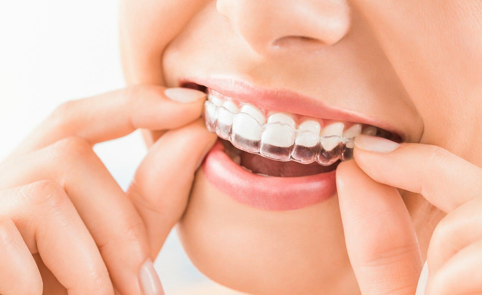 """עו""""ד נעמי קויפמן ניב I תביעות רשלנות רפואית I רשלנות רפואית ברפואת שיניים"""